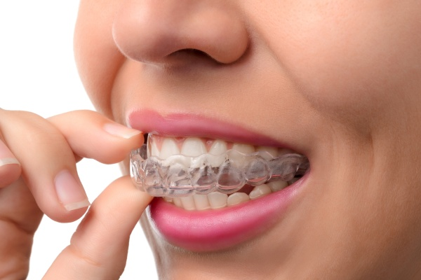 Tips For Adjusting To Invisalign