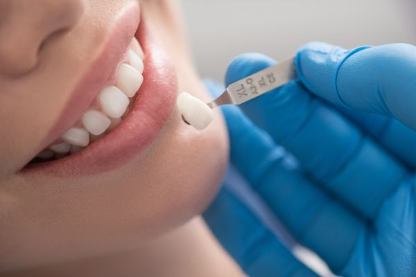 Dental Veneers Are An Ideal Solution For Improving Your Smile