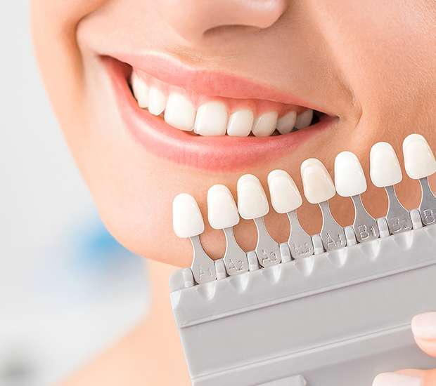 Visalia Dental Veneers and Dental Laminates