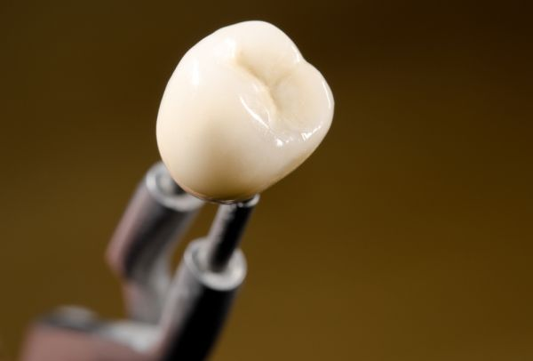 How Long Do Implant Crowns Last?