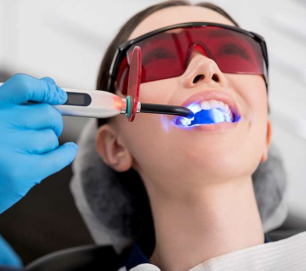 Visalia Professional Teeth Whitening